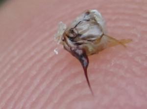 ○ミツバチの針 毒嚢